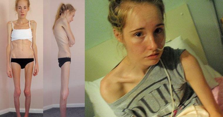 Joven Anoréxica Que Estuvo Al Borde De La Muerte Muestra