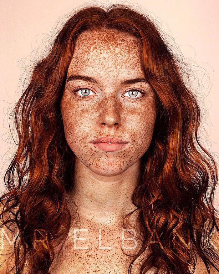 freckles-portrait-photography-brock-elbank-107__700
