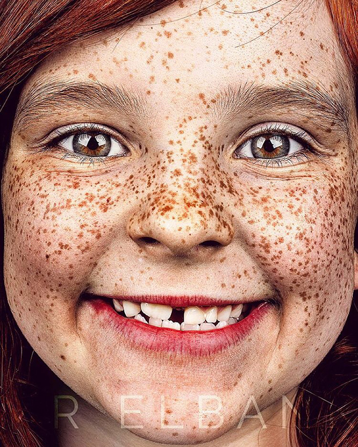 freckles-portrait-photography-brock-elbank-135__700