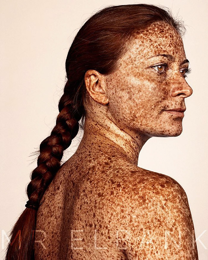freckles-portrait-photography-brock-elbank-145__700