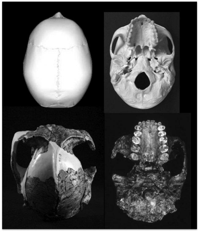 th_b4ad7bd0e72f1f1901536d6d4f1312d8_dientes-cerebro