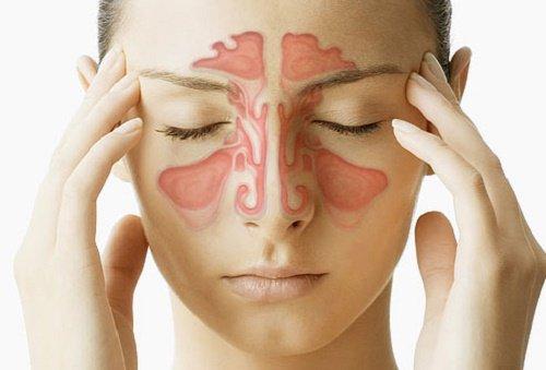 Congestion-nasal-500x339