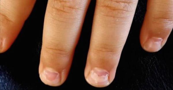 HFMD-enfermedad-mano-pie-boca-virus-03