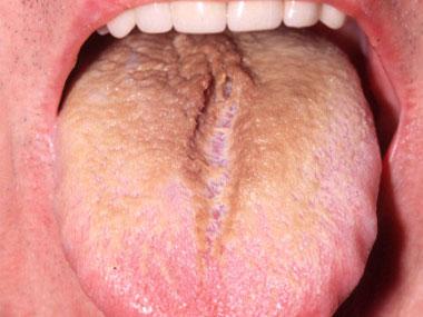 9 Señales de ALERTA que tu lengua te está enviando ¡No las ignores ...