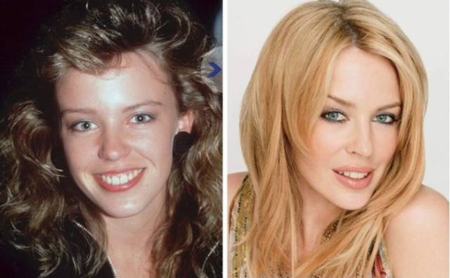 priceless_photos_showing_how_celebs_looked_back_in_the_day_640_16
