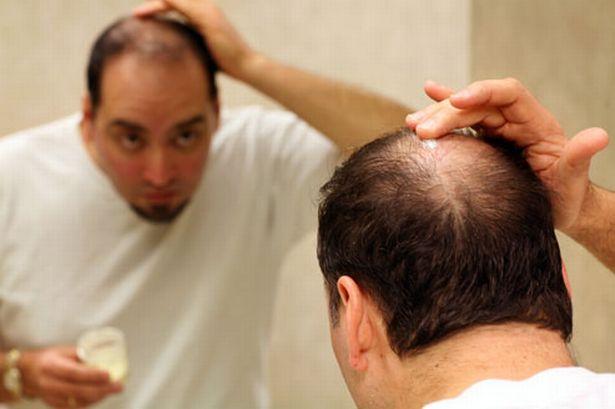 causas-de-la-perdida-de-cabello