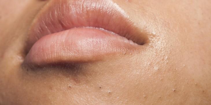 Grano en el labio mayor