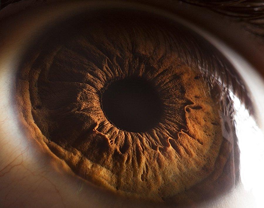 retina31