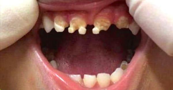 teeth2-600x313