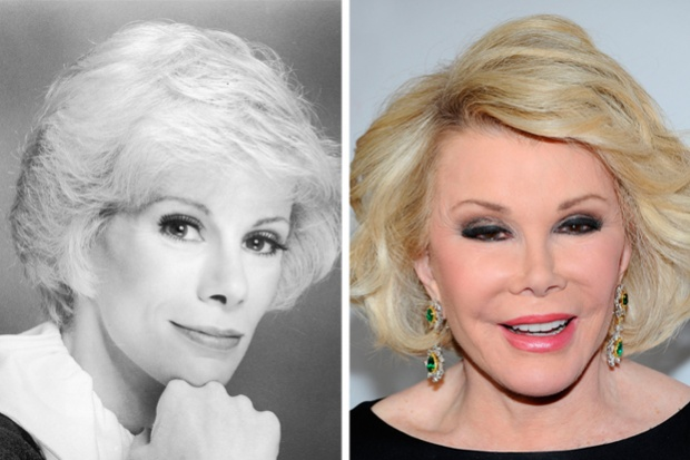 joan_rivers_antes_y_despues_cirugia