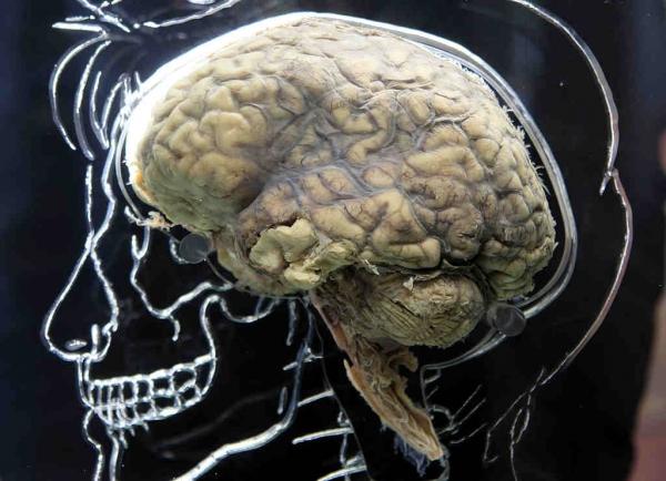 the-real-brain-exhibit-bristol-science-centre
