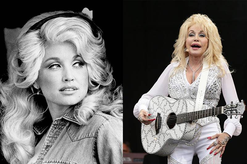 xdolly_parton_antes_y_despues_cirugia.jpg.pagespeed.ic.xff-yNSfDt