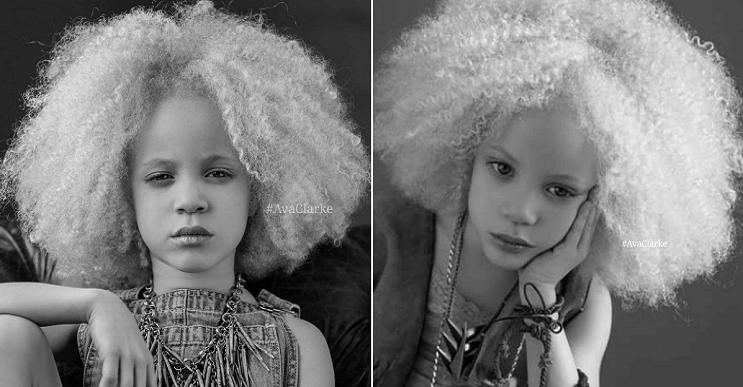 Ava-Clarke-la-niña-albina-de-raza-negra-que-cautiva-en-el-mundo-de-la-moda-portada