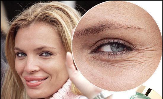 Tratar las Arrugas Alrededor de los Ojos