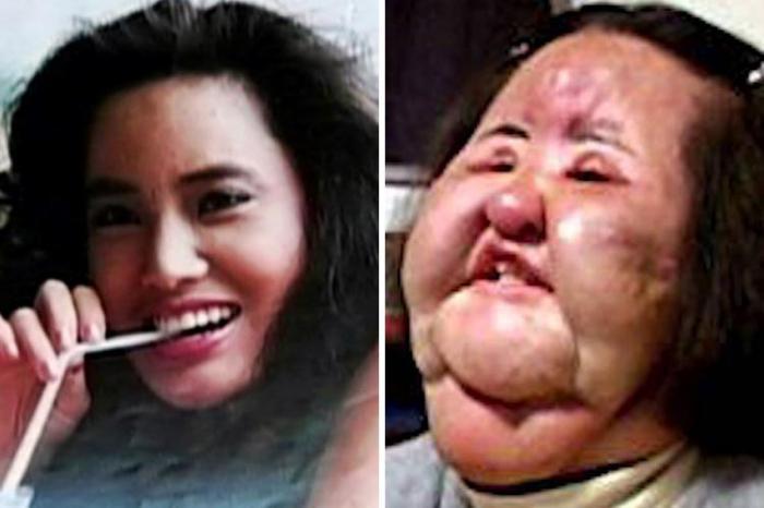 Fotos De Antes De Operarse Y Destrozarse La Cara Estas