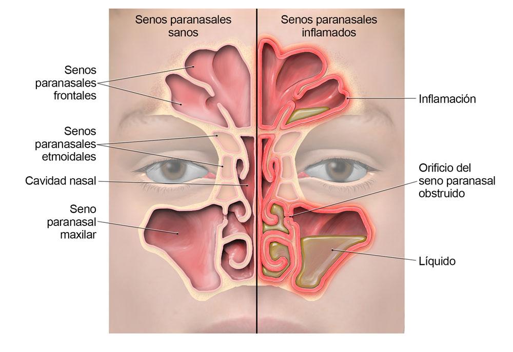 sinusitis-lg-sp