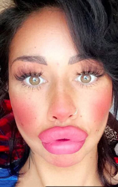 this_mum_has_already_huge_lips_but_she_wants_them_even_bigger_640_08