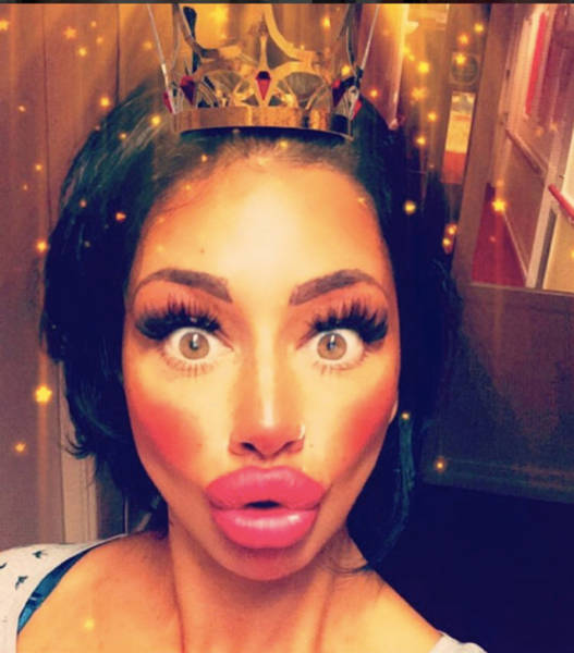 this_mum_has_already_huge_lips_but_she_wants_them_even_bigger_640_09
