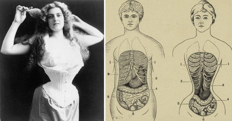 Las 7 modas del pasado que encerraban un peligro mortal - Imagen 1
