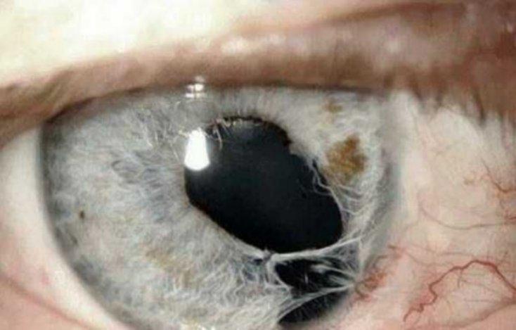 ojos10