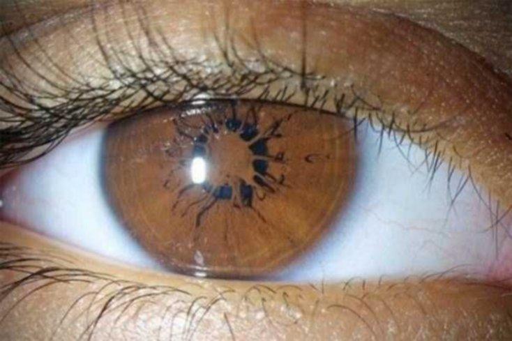 ojos11