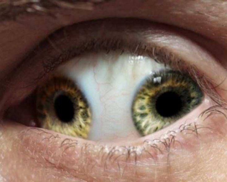 ojos7