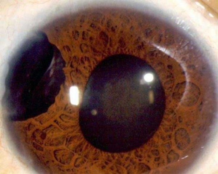 ojos8