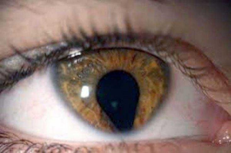 ojos9