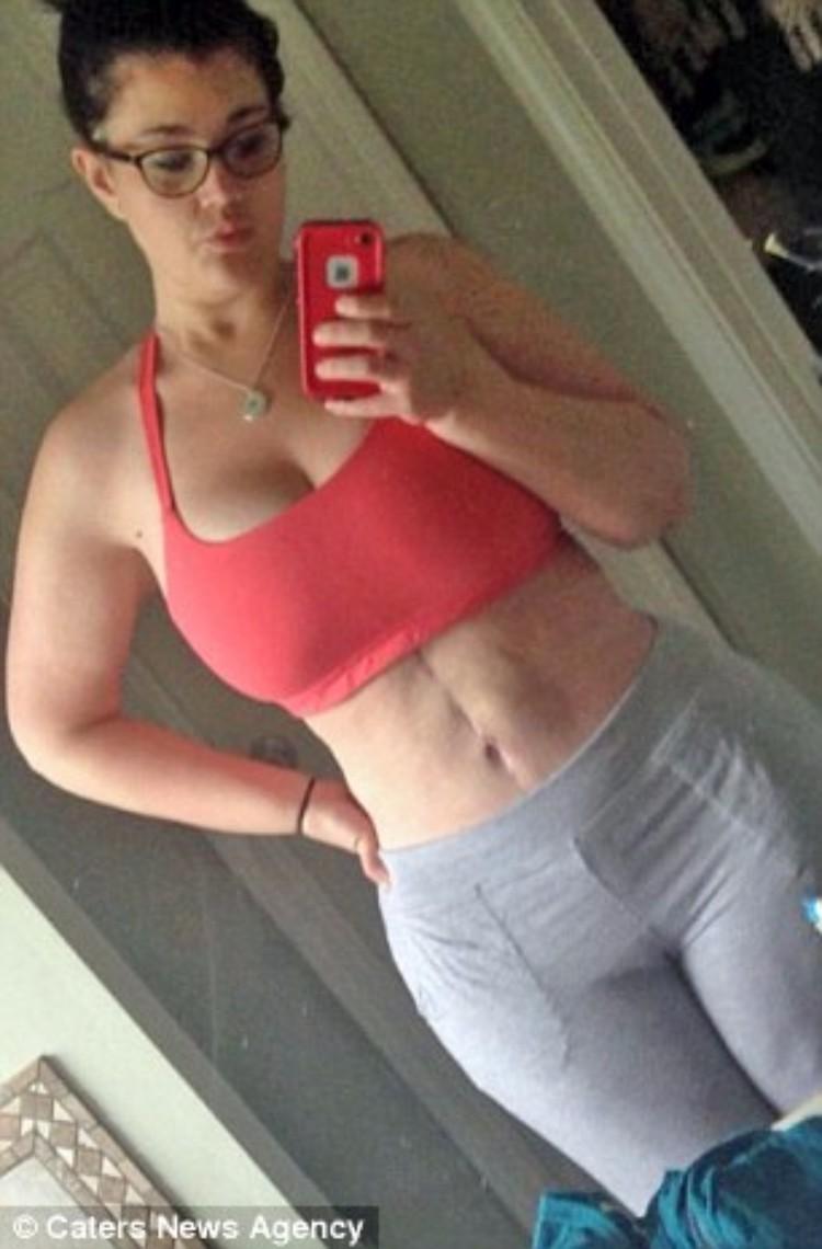 kaitlyn-smith-cirugia-remover-piel-10
