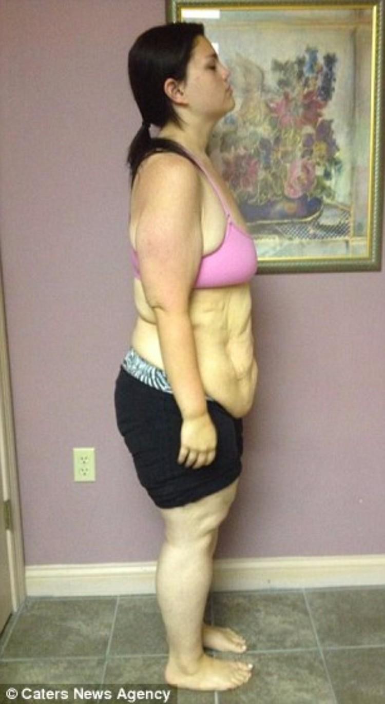 kaitlyn-smith-cirugia-remover-piel-11