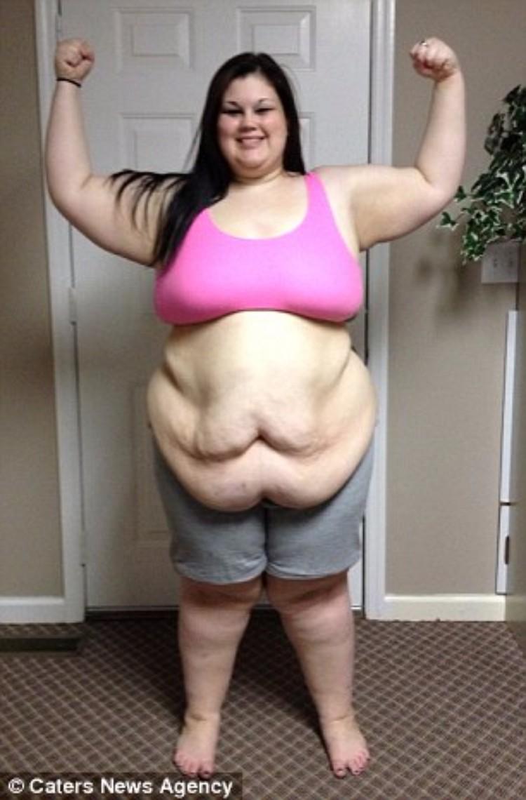 kaitlyn-smith-cirugia-remover-piel-13