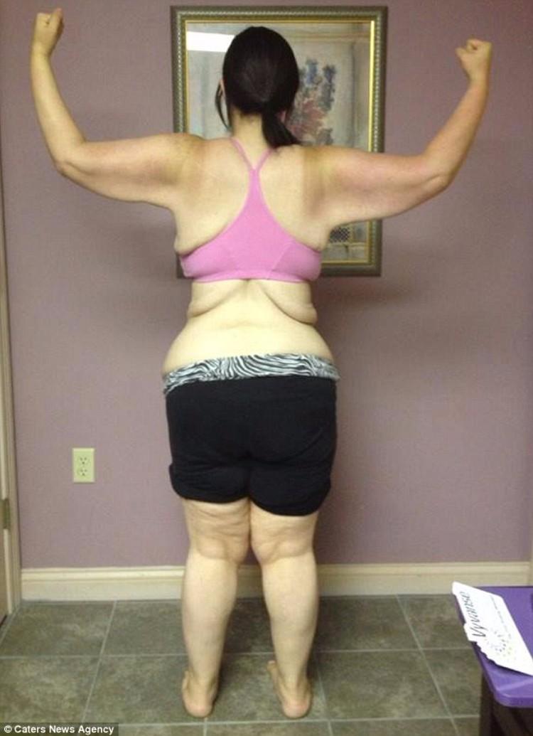 kaitlyn-smith-cirugia-remover-piel-14