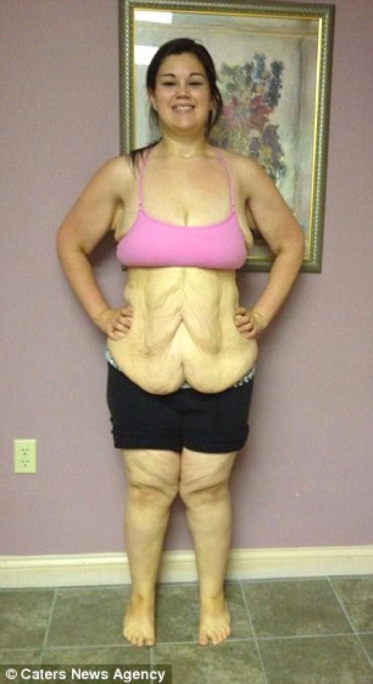 kaitlyn-smith-cirugia-remover-piel-16