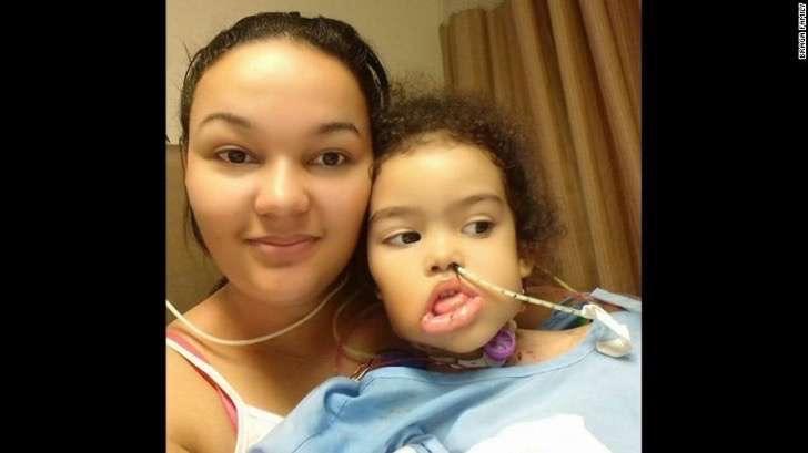 170124150231-02-surgeons-successfully-remove-rare-facial-tumor-exlarge-169-2