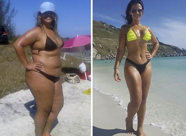 Obesos morbidos antes y despues de adelgazar