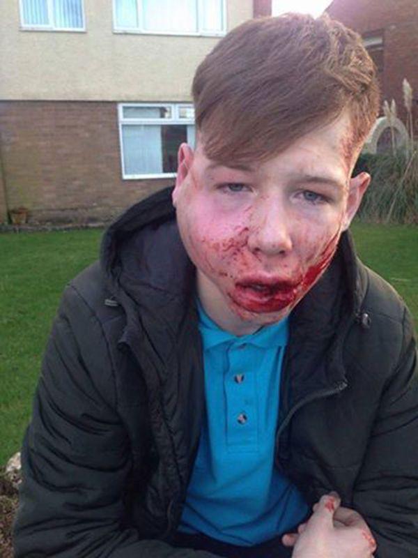 adolescente-golpeado-asaltado-2