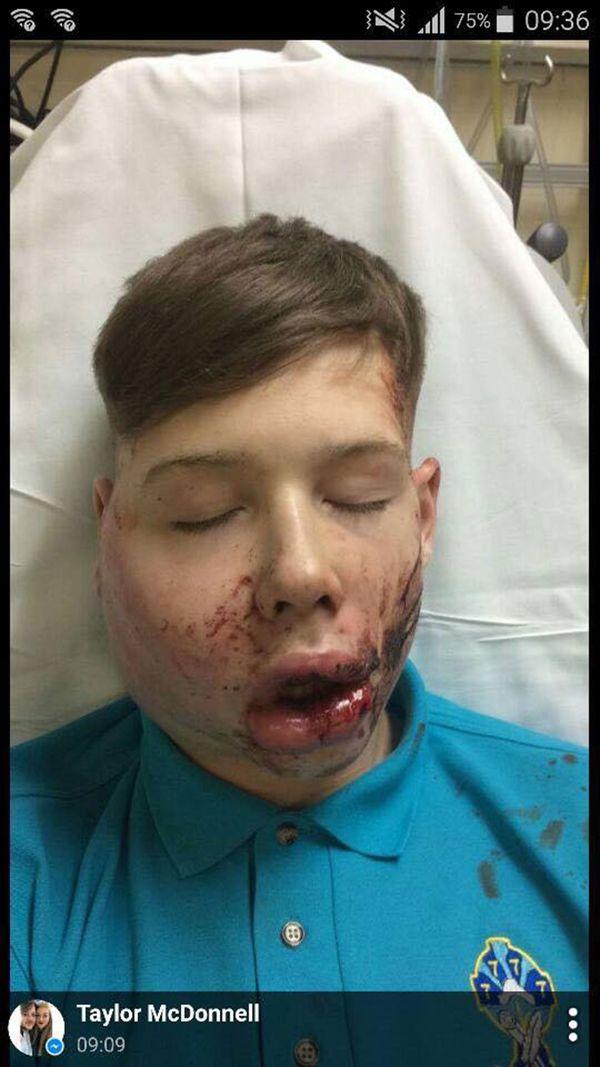 adolescente-golpeado-asaltado-4