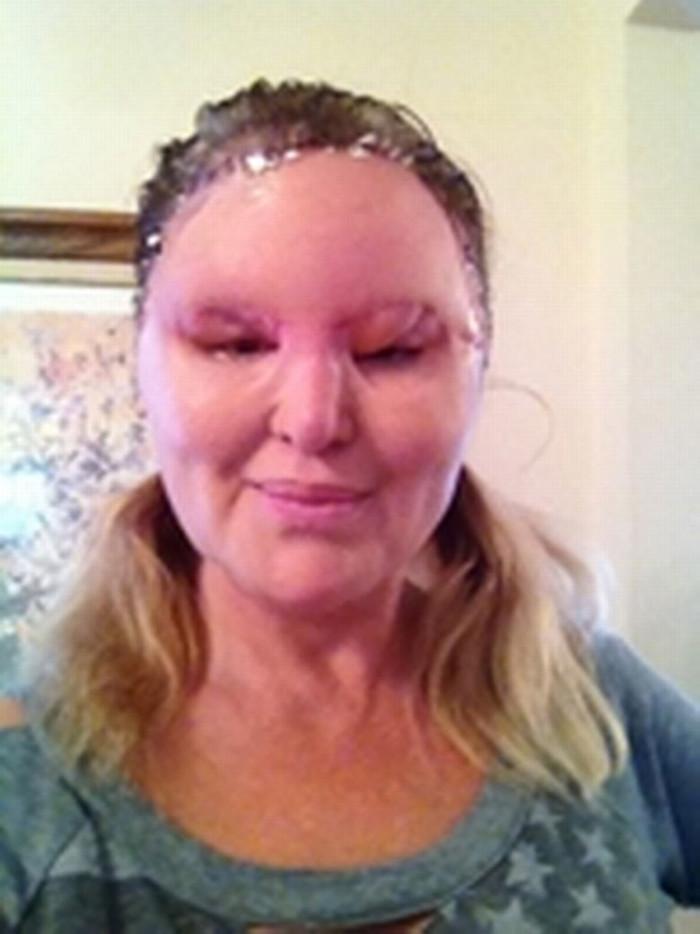 Inyecciones de belleza hicieron de esta mujer un monstruo