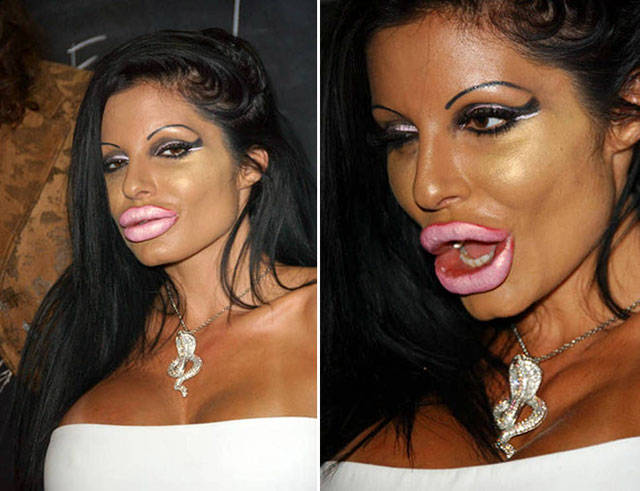 when_the_plastic_surgery_fails_irreversibly_640_10