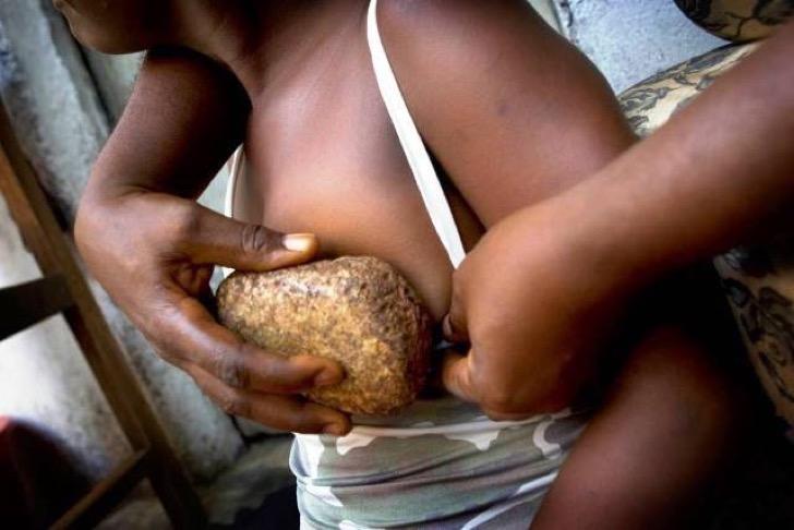 BG8390 Breast ironing with hot stone, Douala, Cameroon.