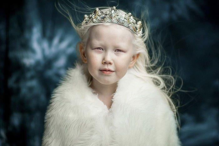 Niña-albina-1