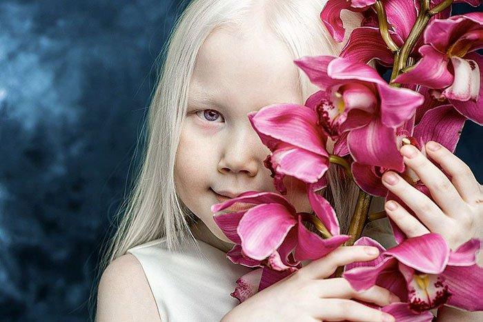 Niña-albina-12