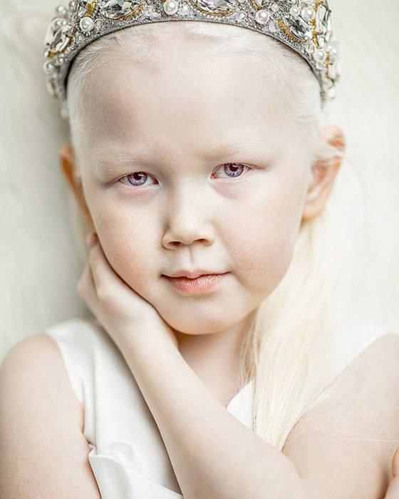 Niña-albina-13-560x700