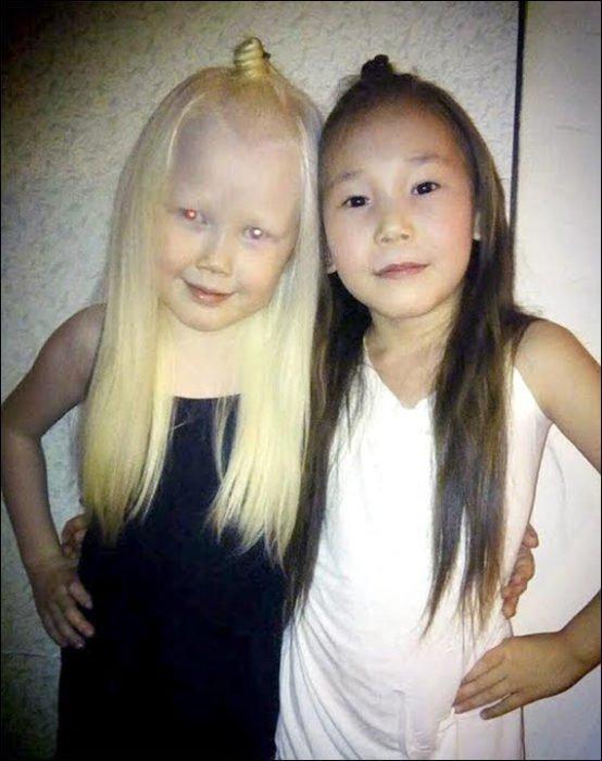Niña-albina-14-554x700