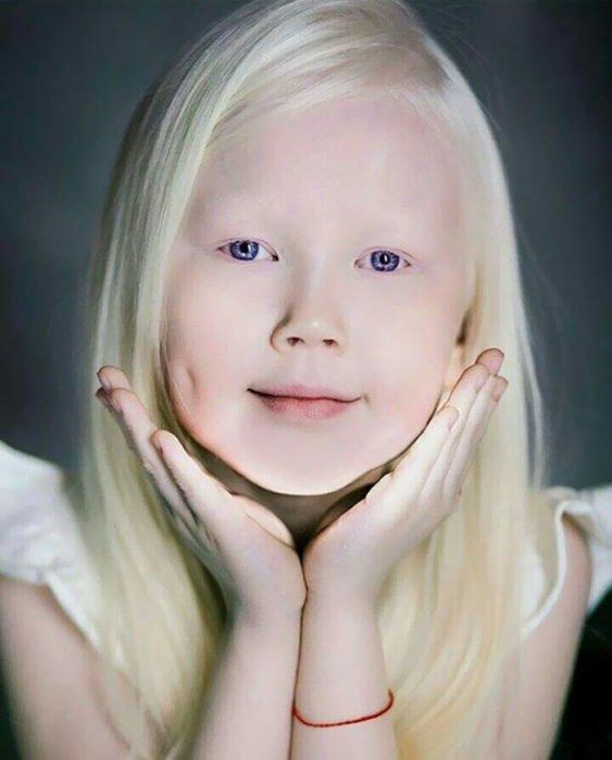 Niña-albina-3-563x700