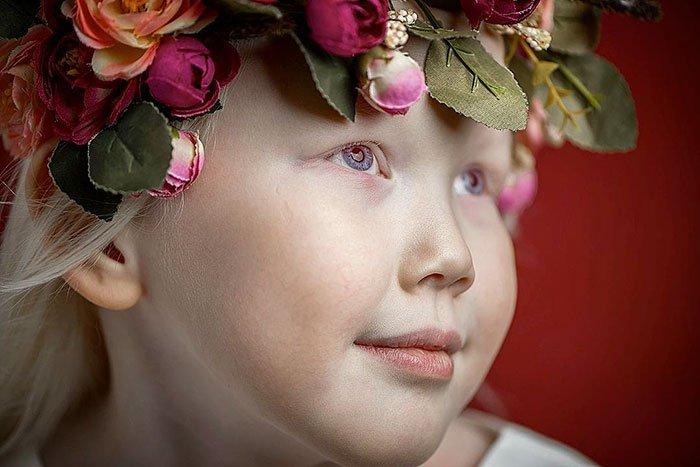 Niña-albina-4