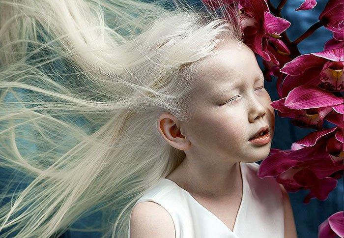 Niña-albina-5