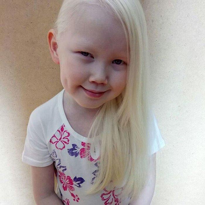 Niña-albina-6-700x700