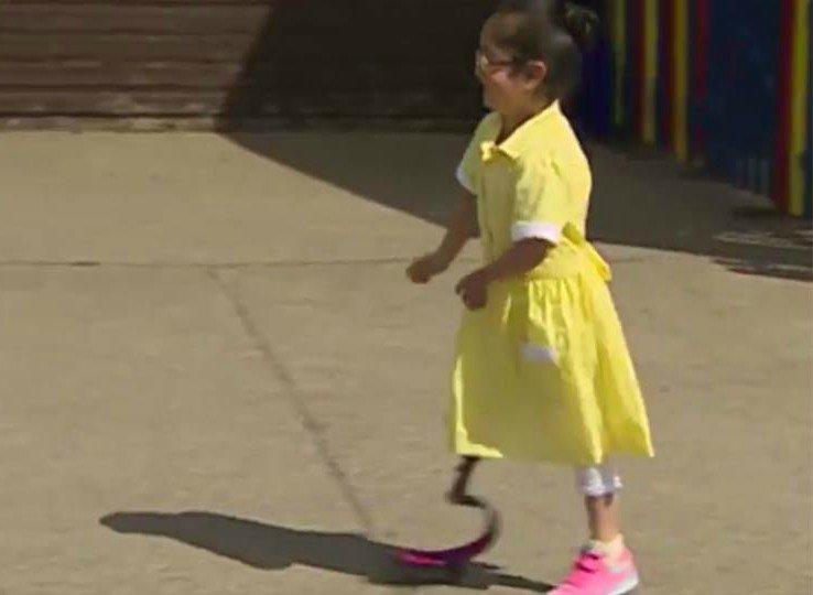 niña-con-protesis-vuelve-a-la-escuela