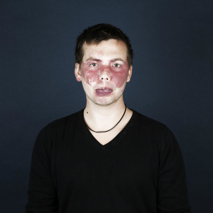 birthmark-portrait-photography-port-wine-stain-naevus-flammeus-linda-hansen-28-592d14fde3e6a__700